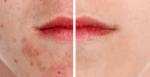 acne behandeling