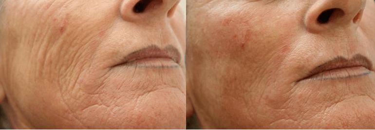 verslapte huid verstevigen