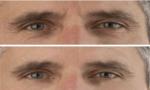 huidverjonging voor mannen
