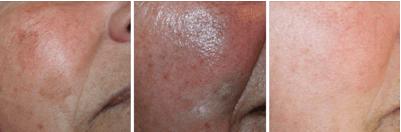 pigmentvlekken behandeling