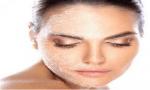 schilferige droge huid