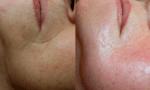verslapte huid