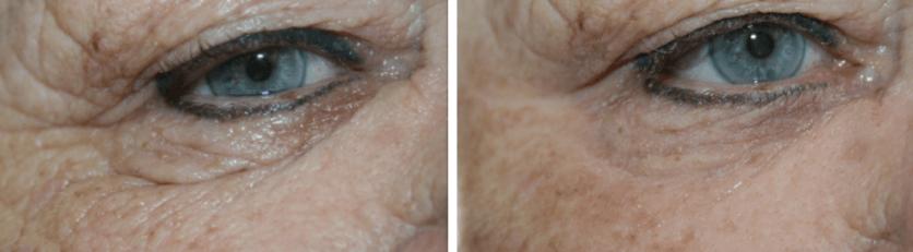 rimpels verminderen zonder botox