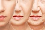 qms medicosmetics oplossingen voor huidproblemen huidinstituut Parkstad kerkrade natural beauty